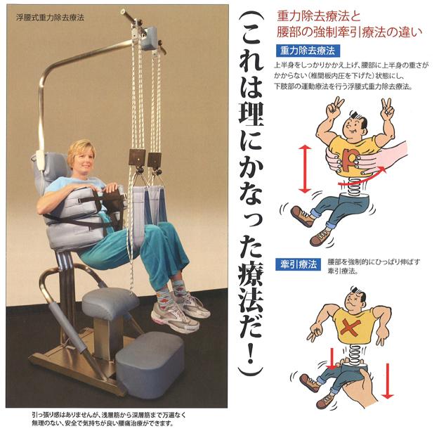 浮腰式重力除去療法